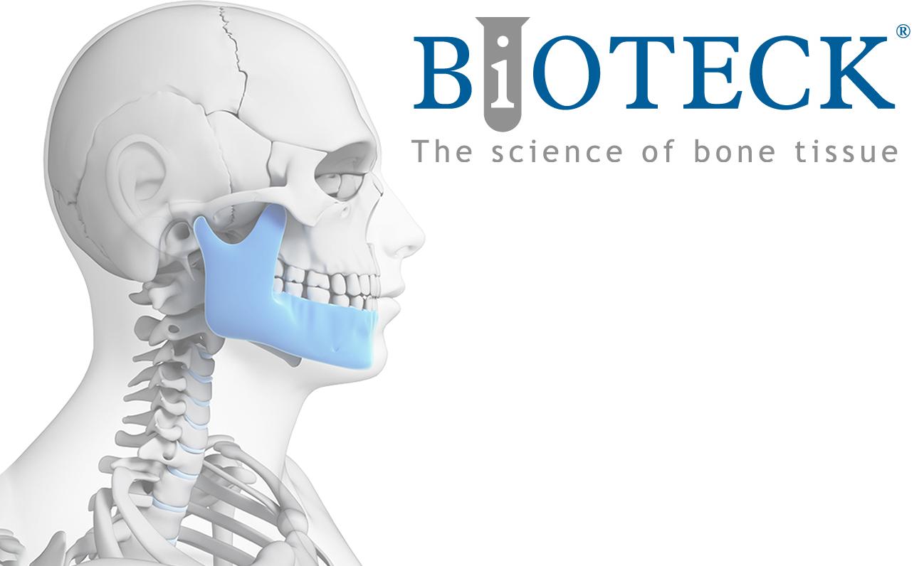 Materiale de augmentare osoasa - Bioteck® S.p.A. Italia